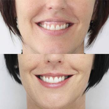 Устранение десневой улыбки